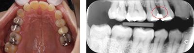 虫歯症例1
